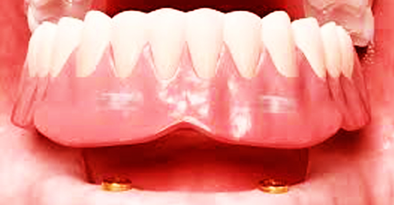 Two Implant Retain Denture An Affordable Solution